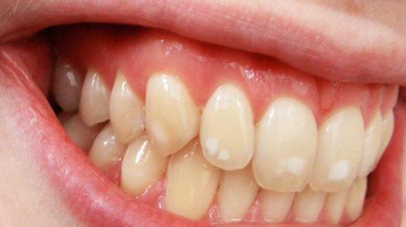 فلوروزیس دندانی