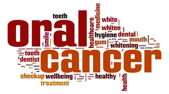 بهداشت دهان و دندان و ریسک ابتلا به سرطان
