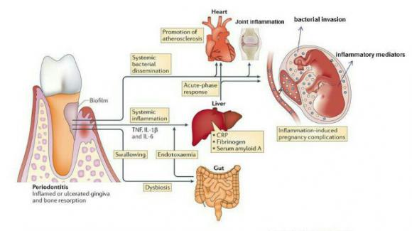 رابطه بیماری های لثه با برخی بیماری های سیستمیک